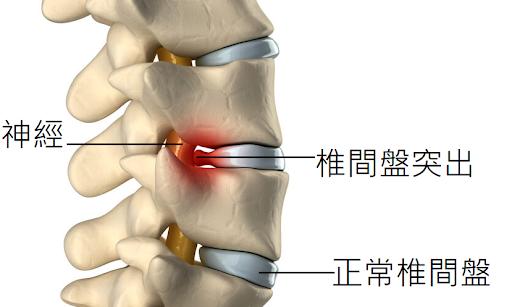 椎間盤突出